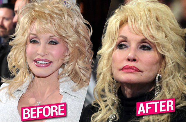 Dolly Parton's Plastic Surgery, The Many Procedures She Had Done