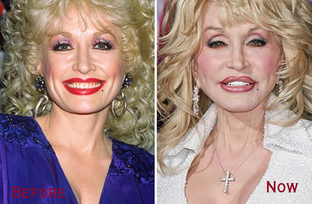 Dolly Parton's Plastic Surgery